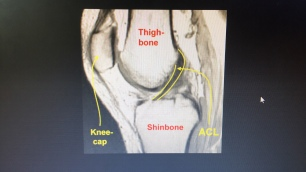 This is what an ACL is supposed to look like